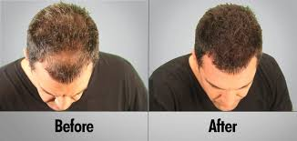 Best Hair Transplant Clinic in India  Hairsure International-Services-Health & Beauty Services-Beauty-Hyderabad