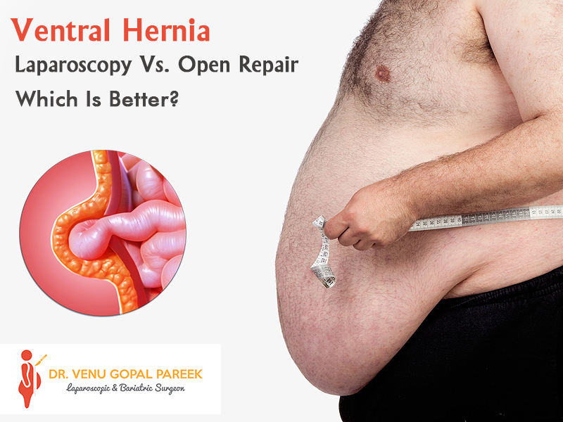 Best Hernia specialist in Hyderabad | Dr Venugopal Pareek-Services-Health & Beauty Services-Health-Hyderabad