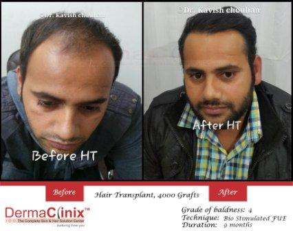 Top Reasons For Common Hair Loss Issues in Everyone-Services-Health & Beauty Services-Beauty-Delhi