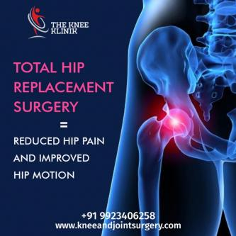 Hip Replacement Surgery | Orthopedic Surgeon |Knee Replacement |-Jobs-Health Care-Pune