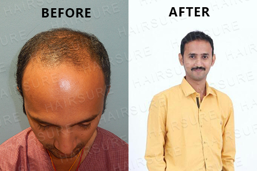 HairSure: Best Hair Transplant Clinic in Hyderabad-Services-Health & Beauty Services-Health-Hyderabad