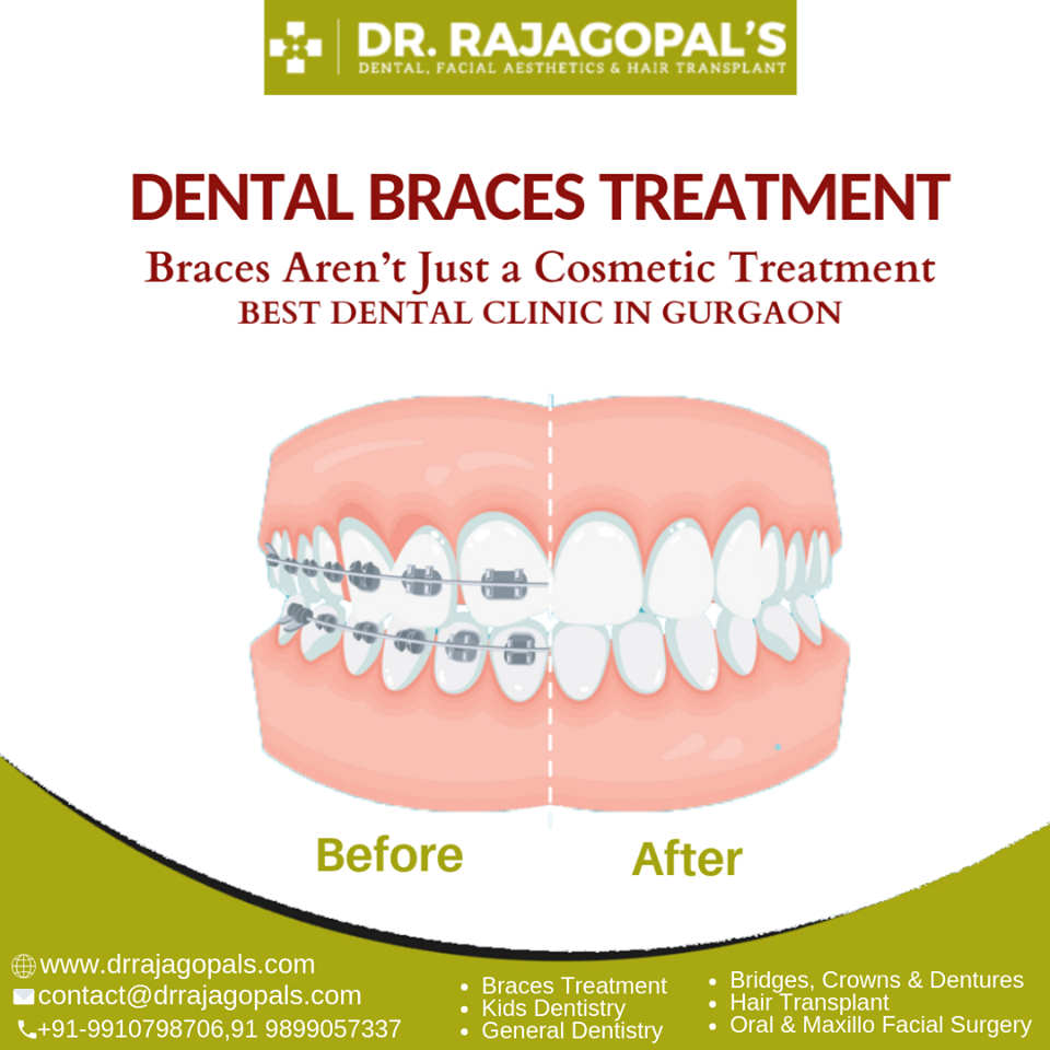 Best Dental Implants in Gurgaon-Services-Health & Beauty Services-Health-Delhi