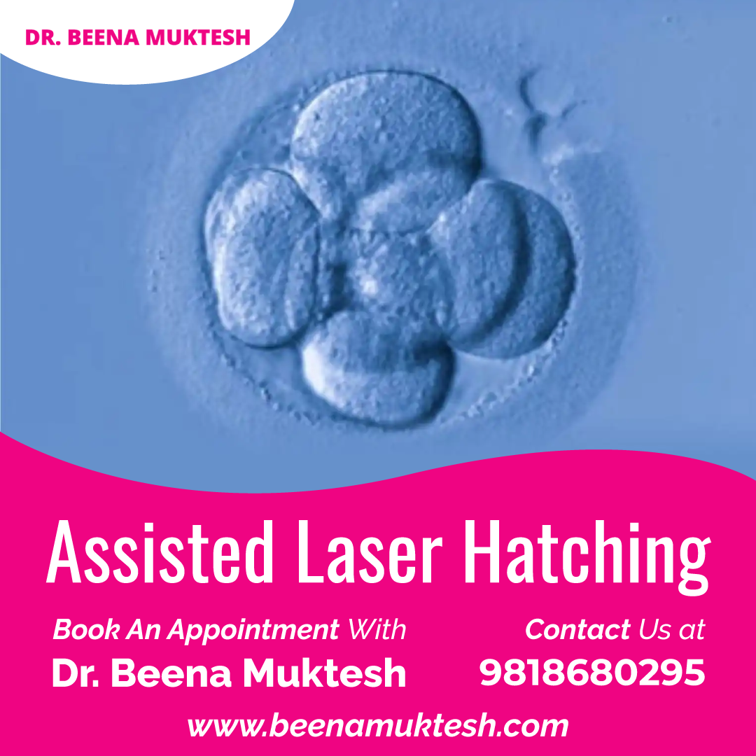 Assisted Laser Hatching-Services-Health & Beauty Services-Health-Gurgaon