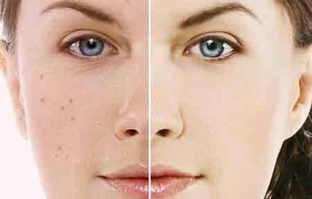 Consult with the best dermatologists at Fortis for skin related-Services-Health & Beauty Services-Health-Karnal