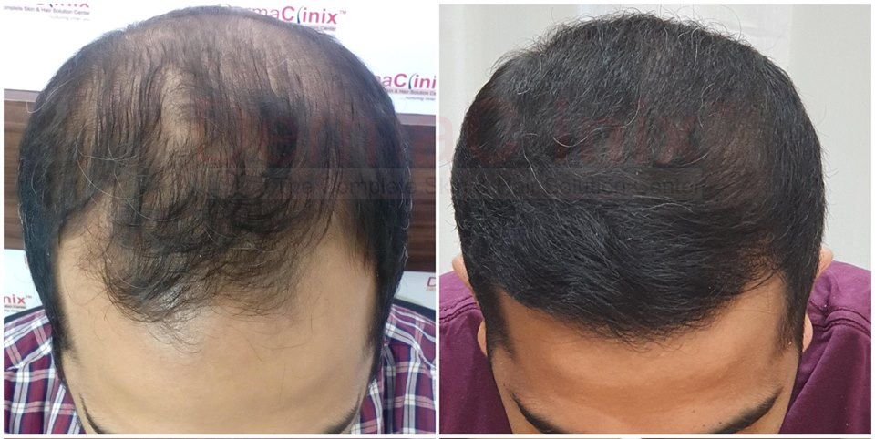 Latest Trends in Hair Restoration-Services-Health & Beauty Services-Beauty-Delhi
