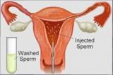 IUI Procedure-Services-Health & Beauty Services-Health-Hyderabad
