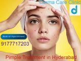Pimple Treatment in Hyderabad | Acne Treatment -Services-Health & Beauty Services-Beauty-Hyderabad