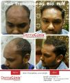 Things to Consider Before Getting a Hair Transplant-Services-Health & Beauty Services-Beauty-Delhi