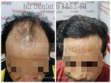Get Affordable Hair Transplant Surgery in Delhi-Services-Health & Beauty Services-Beauty-Delhi