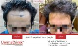 Get Your Confidence Back with Hair Transplant-Services-Health & Beauty Services-Health-Delhi